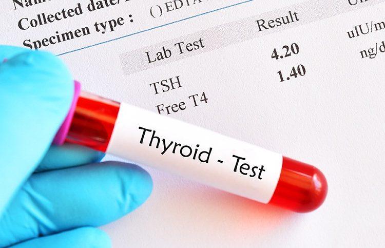 დადგა დრო, ფარისებრი ჯირკვლის ფუნქცია TSH-ის ნაცვლად თავისუფალი თიროქსინით (FT4) შეფასდეს?