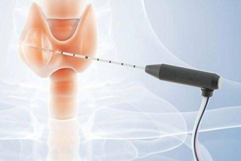 თერმული აბლაციის საუკეთესო მეთოდი ფარისებრი ჯირკვლის კეთილთვისებიანი კვანძების მკურნალობისთვის