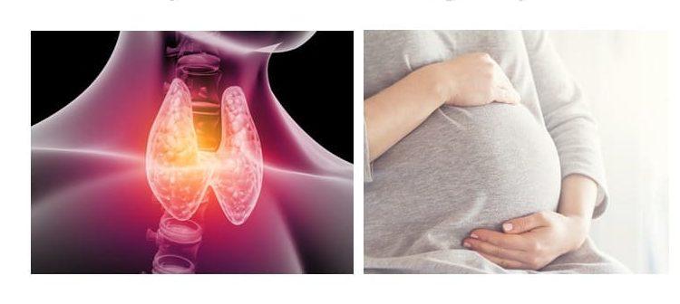 ორსულობისას ლევოთიროქსინის დოზის გადაჭარბება ნაადრევი მშობიარობის რისკს ზრდის